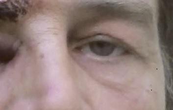 «Мне 51 год, и моя жизнь перевернулась в субботу, 12 января 2019 года, во время проходившей в Ниме акции «жёлтых жилетов». Среди участников акции царила доброжелательная атмосфера, но полицейские действовали неадекватно